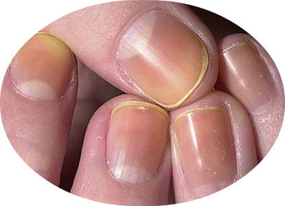 Discolored Nails