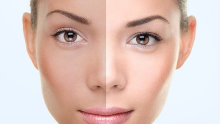 Lightens skin pigmentation