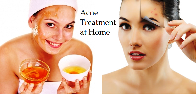 HOW TO GET RID OF ACNE AT HOME?