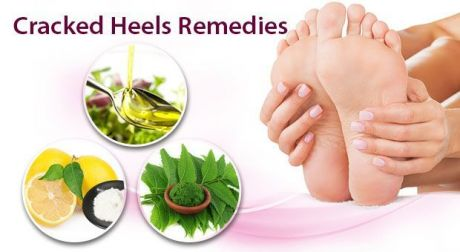 7 Incredible Home Remedies for Cracked Heals