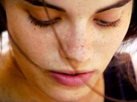 Remove hyper pigmentation With These Easy Home Remedies